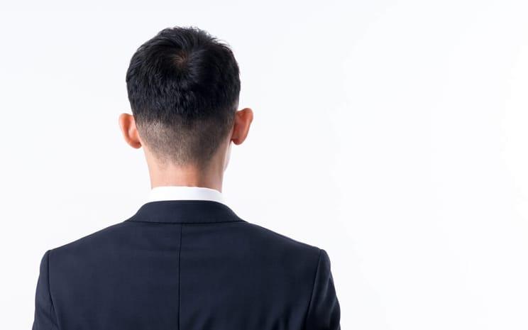 【医師が教える】円形脱毛症はなぜできる?原因と対策を詳しく解説