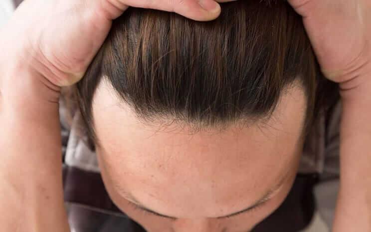 【医師が教える】おでこが広いとM字ハゲなの? 薄毛との境界線とは